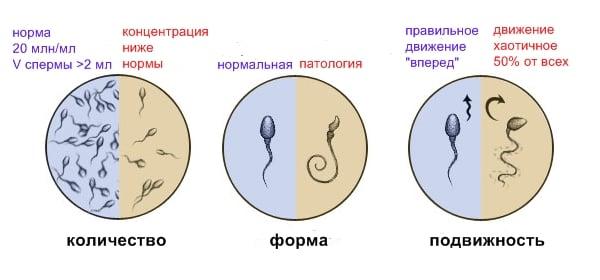 Андролог лечение мужского бесплодия - Бесплодие
