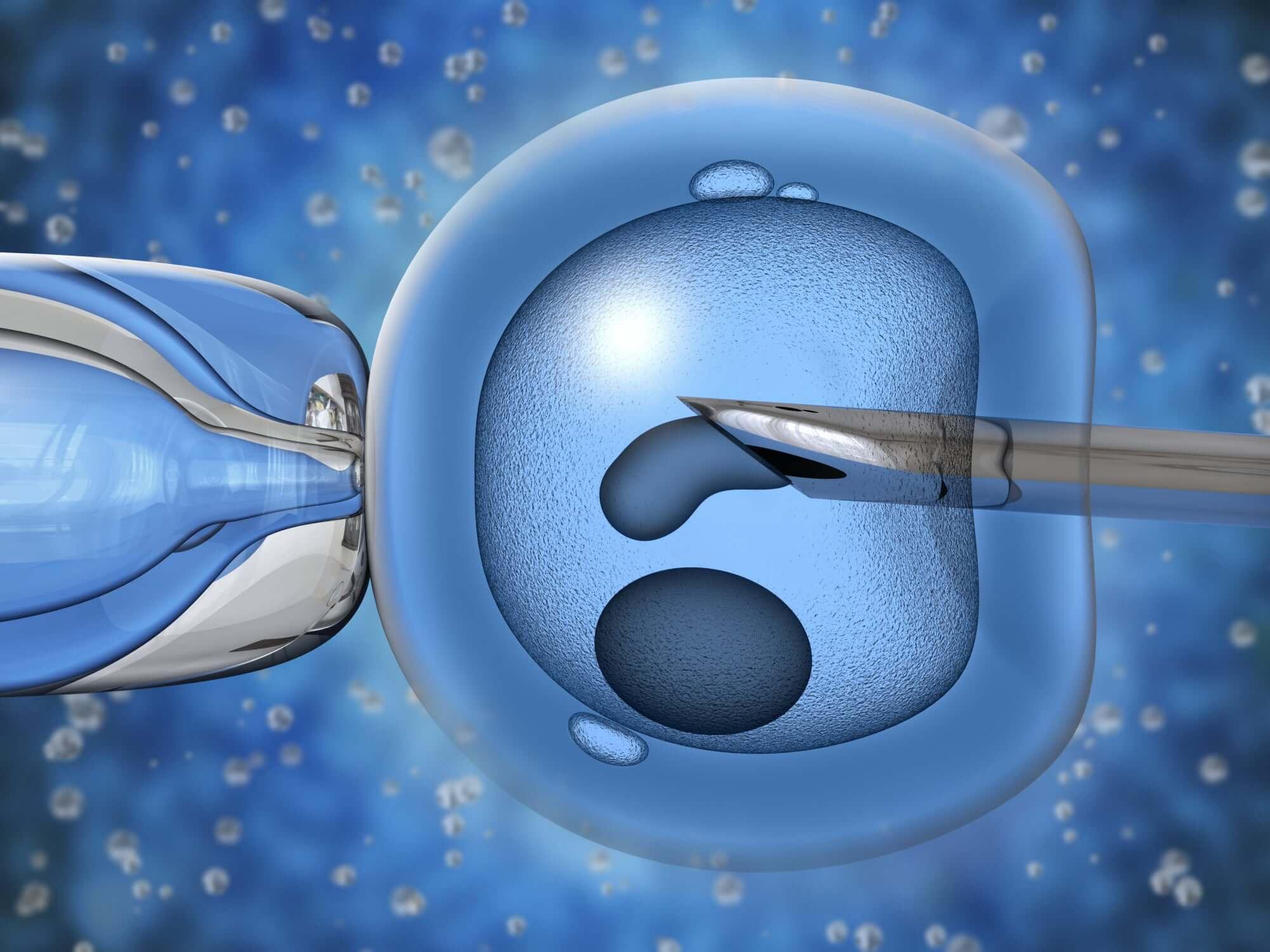 Отбор сперматозоидов при эко
